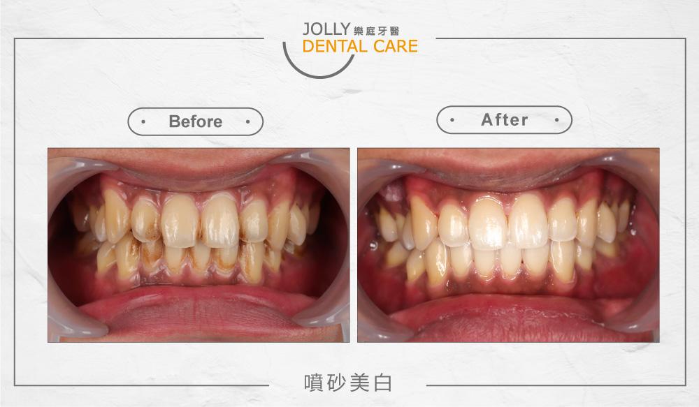 樂庭牙醫噴砂美白案例