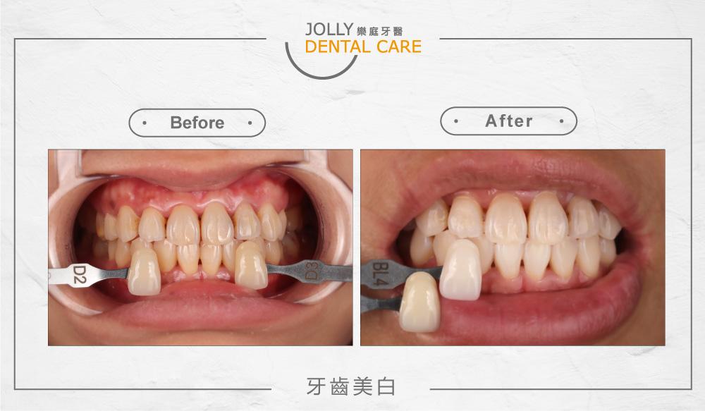 樂庭牙醫牙齒美白案例