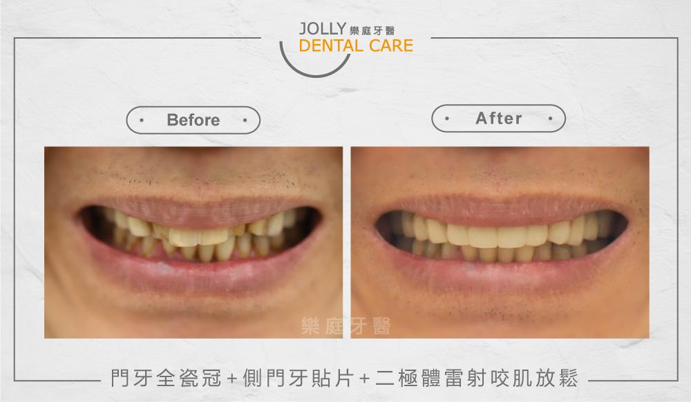 門牙全瓷冠+側門牙貼片+二極體雷射咬肌放鬆