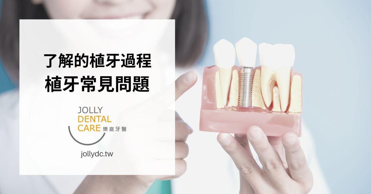 植牙前必須了解的植牙流程及常見問題-專業醫師為您解析 | 台中樂庭牙醫